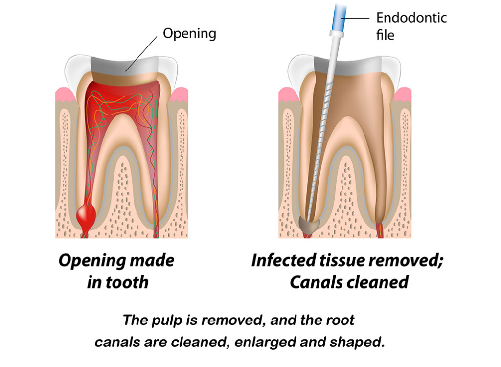 Root-Canal_Treat_Diagram